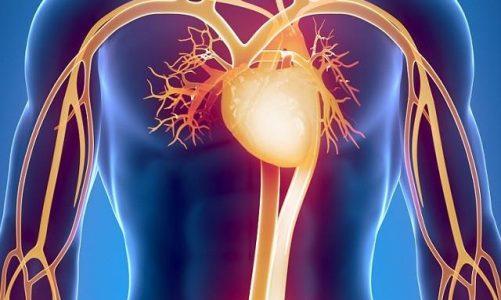 5 najczęstszych chorób układu krążenia
